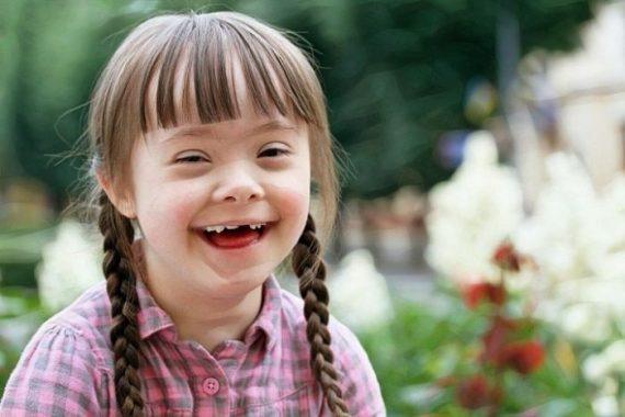 Lo que se debería saber sobre el síndrome de Down