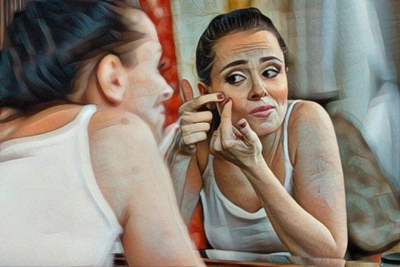 Mujer que padece trastorno de excoriación